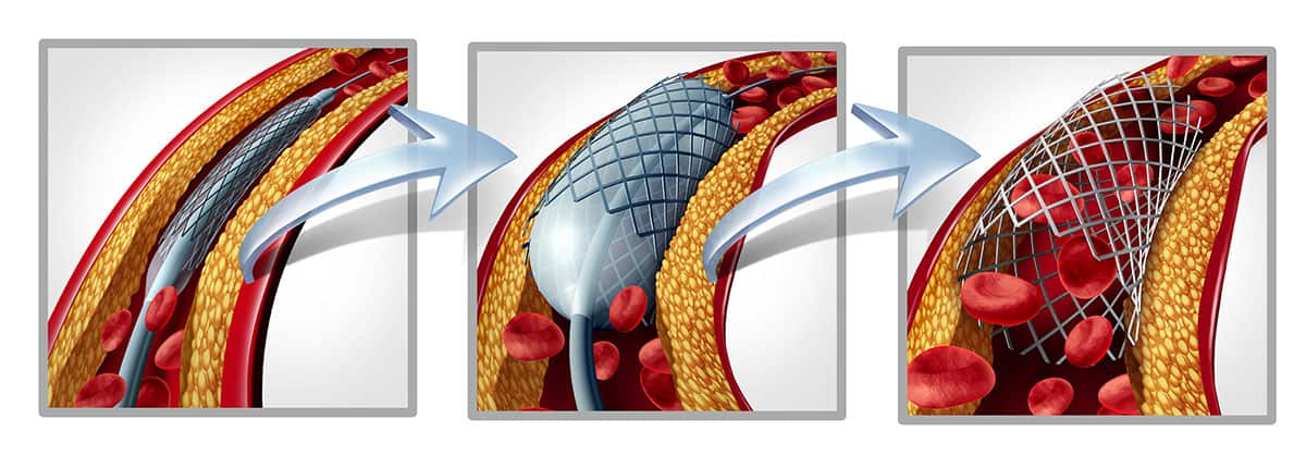 Tryptic stent and angioplasty graphic