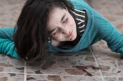 Young girl slip and fall accident victim laying on floor with bleeding nose